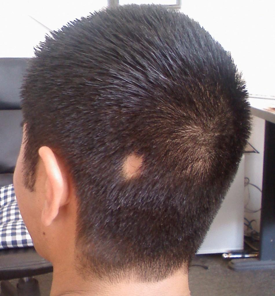 Народные средства для волос с репейным маслом