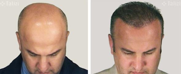 До и после пересадки