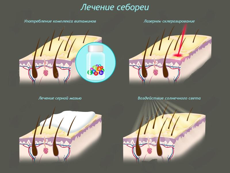 Лечение себорейного дерматита волосистой части головы в домашних условиях