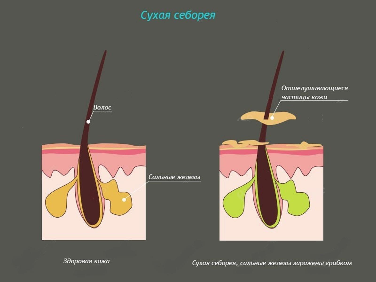 Народные средства при сухой себореи кожи головы