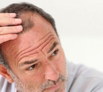 Предотвращение выпадения волос у женщин и мужчин