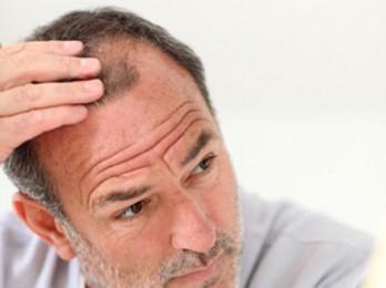 Об очаговом выпадении волос