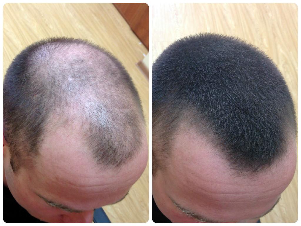 Народные средства что бы волосы быстро росли