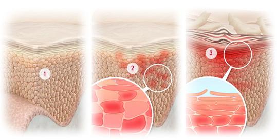 Заболевание на жирной коже