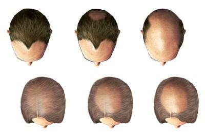 Маска для волос миндальное масло желатин