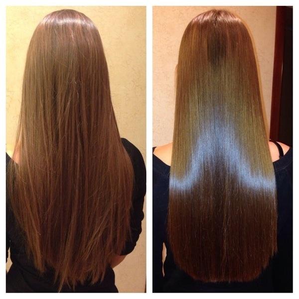 Повторная пересадка волос через