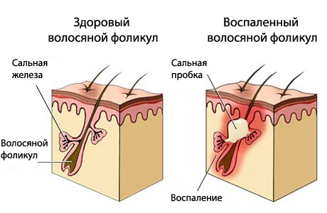 Себорейный дерматит
