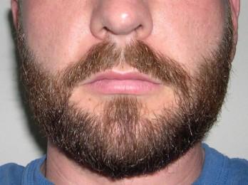 Рекомендации по применению мази для роста бороды