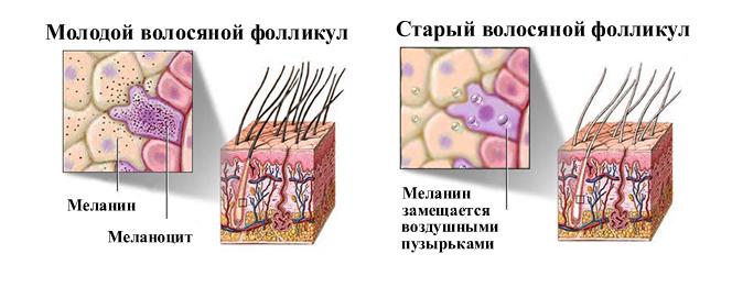 Отсутствие меланина