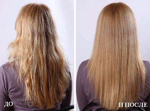 Волосы выпадают с корнем и не восстанавливаются