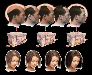 нормальный рост волос в области бикини