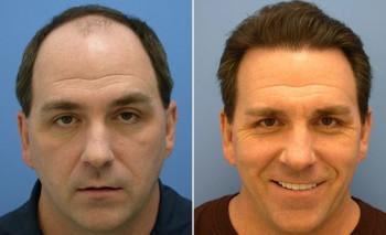 Какие маски можно делать после кератинового выпрямления волос
