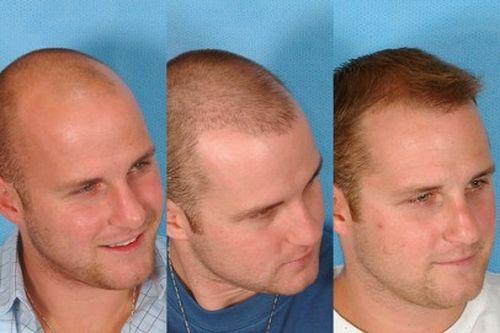 Народные средства против выпадения волос отзывы