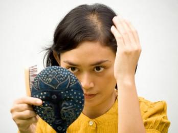 Причины и лечение облысения у женщин