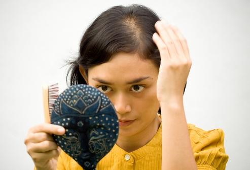 Причина выпадение волос у женщин лечение
