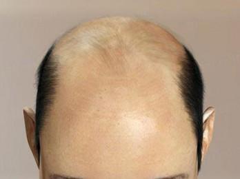 Помогают ли ок при выпадении волос