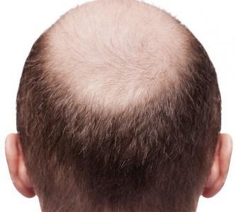 Изучение причин выпадения волос у мужчин