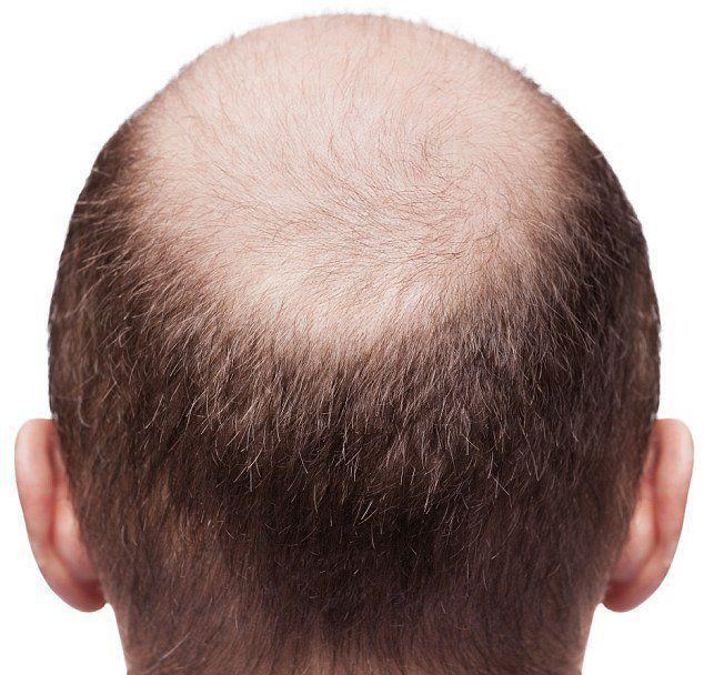 Почему выпадают волосы сильно причины обильной