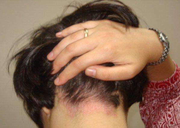 Как вылечить псориаз навсегда на голове