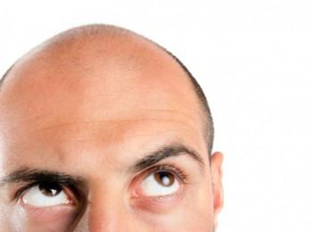 Раннее облысение у мужчин — причины и лечение
