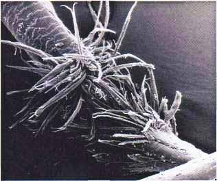 Волос под микроскопом
