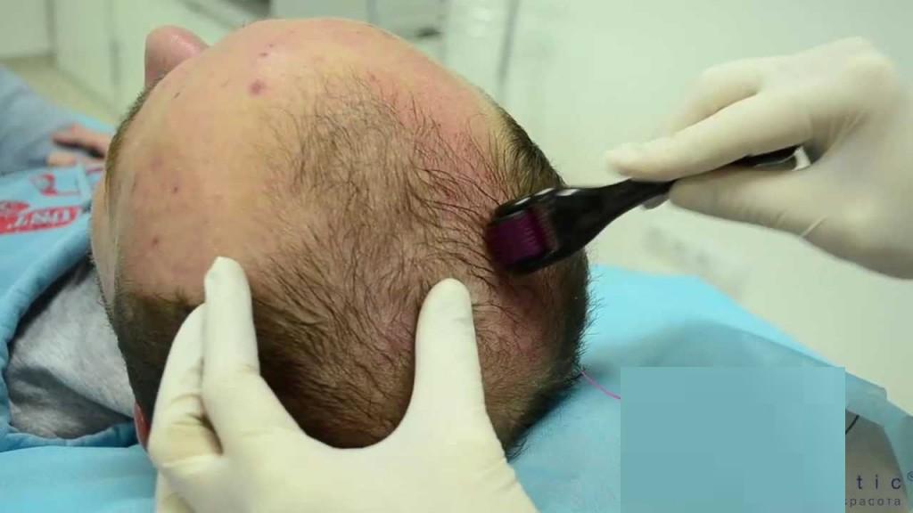 Лечение облысения мезороллером