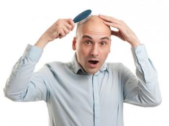 О средствах от выпадения волос у мужчин