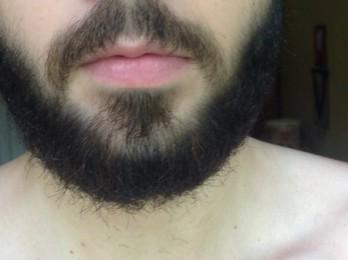 Результаты после Миноксидила для бороды