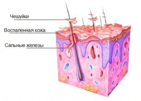 Как избавиться от сухой перхоти: лечение, шампуни, средства