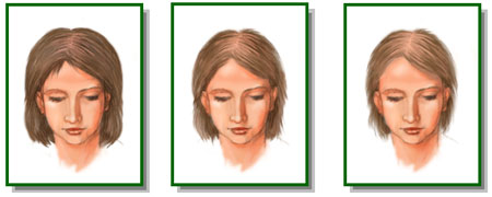 Изменение количества волос при заболевании
