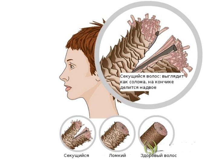 Секущийся волос