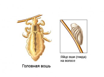 Жизненный цикл головной вши