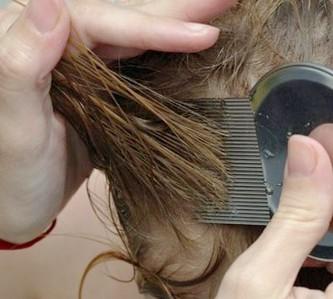 Средства и способы лечения вшей