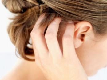 Как и чем лечить псориаз на голове?