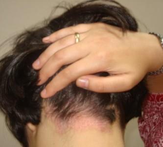 Как избавиться от псориаза на голове?
