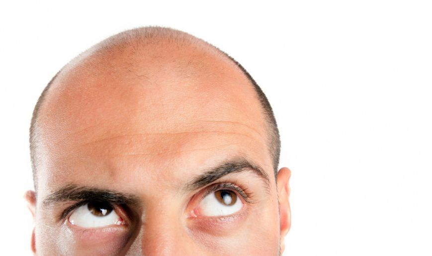 Раннее облысение у мужчин причины — Волосы